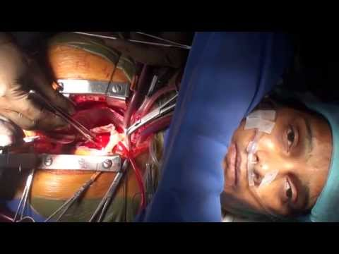 "Awake Cardiac Surgery on a patient with ""Bombay Blood Group""(Full HD)"