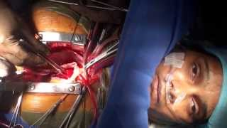 Awake Cardiac Surgery on a patient with Bombay Blood GroupFull HD