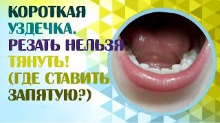 Короткая уздечка языка или короткая подъязычная уздечка.Нужно ли подрезать короткую уздечку?