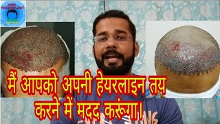 Decide/Select Best Hairline Before You go for Hair Transplant in India