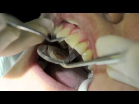 Teeth Bonding - Teeth Bonding Procedure