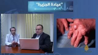 عيادة الجزيرة-التهاب المفاصل الروماتويدي