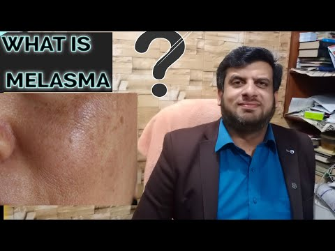 What is malasma | melasma treatment in homeopathy