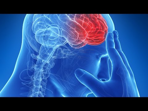 Stroke: Causes, Symptoms and Treatment