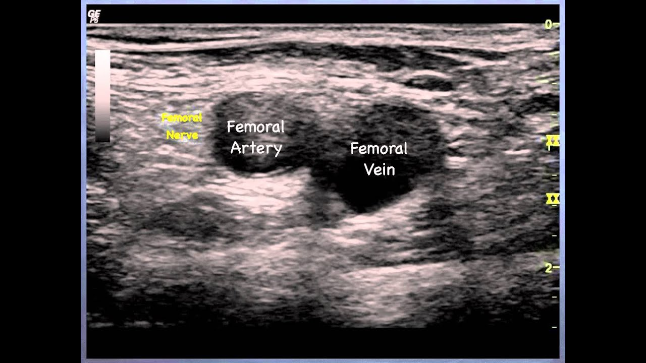 femoral nerve (sonoanatomy) - qmh aed ultrasound casebook 2013, Muscles