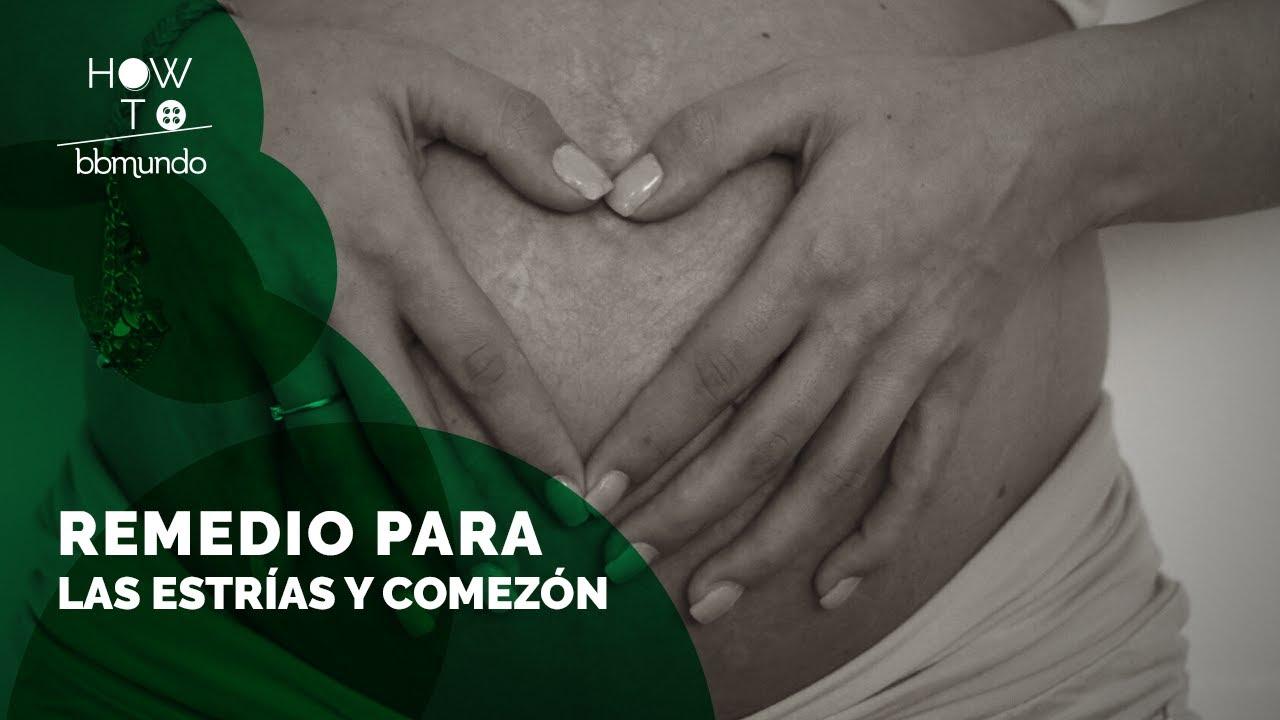 remedios para la comezon en la piel durante el embarazo