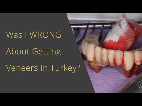 Was I WRONG about Veneers In Turkey??!