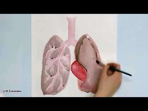 Легкие курильщика - Что происходит с легкими за год курения - One year of smoking