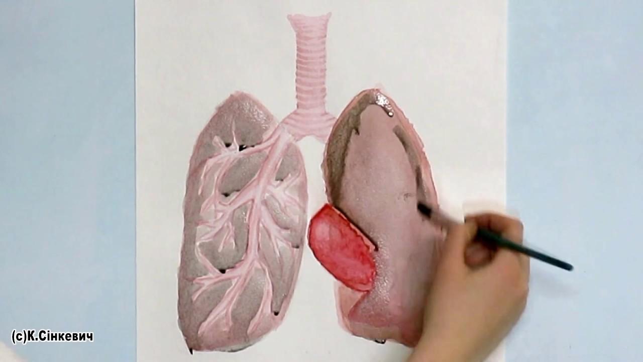 снимки легких курильщика
