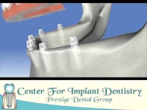 Dental Implants Fremont, California - Center for Implant Dentistry