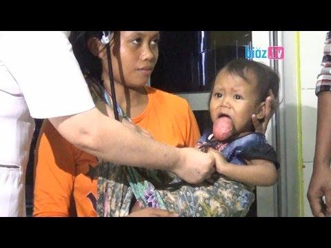 rsud-dr.soedomo-trenggalek-lakukan-ini-terhadap-bayi-penderita-tumor-lidah-asal-panggul---bioz-tv