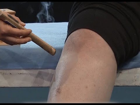 Moxibustion helps with weight loss | CCTV English