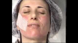 Лазерное омоложение лица в клинике «Вита» в Москве.(http://klinikavita.ru Процедура лазерный пилинг лица проводится на современном оборудовании в клинике лазерной..., 2014-04-02T19:25:22.000Z)