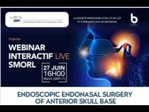 Webinaire :  La chirurgie endoscopique de l'étage antérieur de la base du crâne