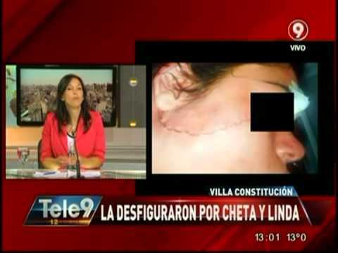 Villa Constitución: La desfiguraron por cheta y linda