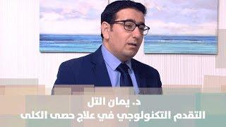 د. يمان التل - التقدم التكنولوجي في علاج حصى الكلى