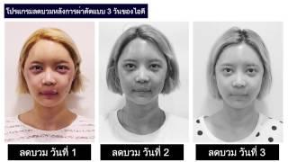 ศัลยกรรมโครงหน้า เกาหลี: รีวิวโปรแกรมลดบวมหลังการผ่าตัดแบบ 3 วัน