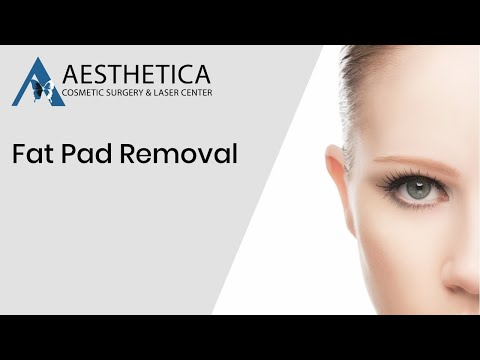 Fat Pad Removal in Eyelid Surgery in Leesburg VA