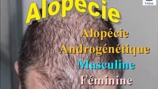 Chute de Cheveux : Alopécie androgenique chez l'Homme et chez la Femme