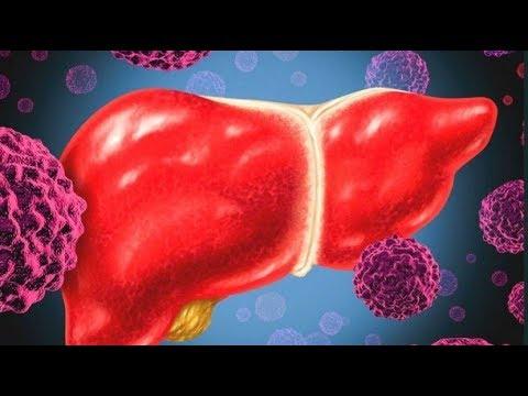 gejala kanker hati - YouTube