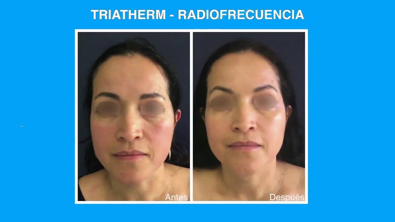 Rejuvenecimiento sin cirugía en Bogotá, Colombia | Triatherm