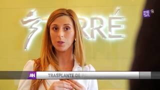 Implante Capilar - Reportaje en Ahora Noticias de Mega