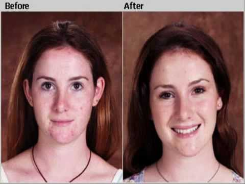 hqdefault - Get Rid Acne Home Remedies Yahoo