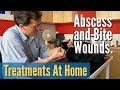 Abscess and Bite Wounds Treating At Home