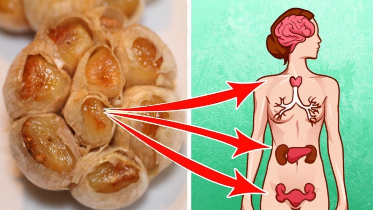 Eating  Roasted Garlic Can Heal Your Body In Just 24 Hours