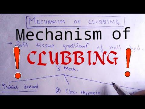 Mechanisms of clubbing    Clubbing    NEET PG  