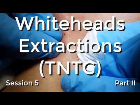 Whiteheads Extraction (TNTC) - Session 5 Part II