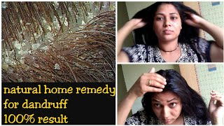 How to Remove dandruff permanently||100% result in 1 wash||mana inty tip\'s