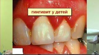 Гингивит у детей и беременных(1. Гингивит при прорезывании зубов 2. Симптомы гингивита у детей 3. Лечение гингивита у детей 4. Гингивит у..., 2015-08-24T20:15:30.000Z)