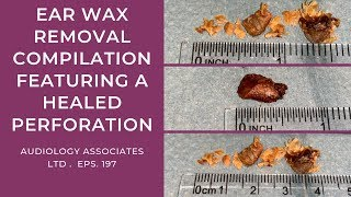 EAR WAX REMOVAL COMPILATION FEATURING A HEALED PERFORATION - EP197