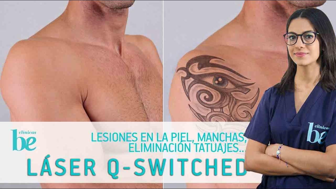 crema despigmentante para eliminar tatuajes