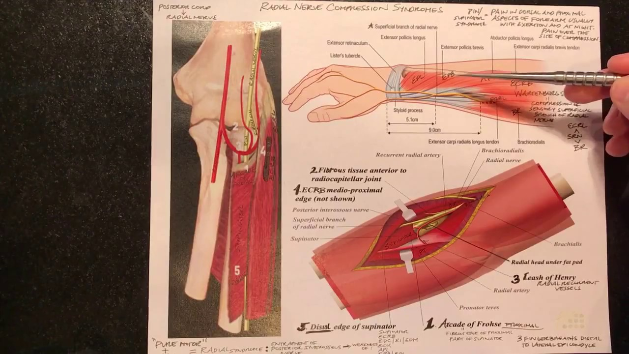 Radial Nerve Compression Syndromes (Radial Tunnel Syndrome ...