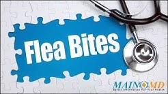 Flea Bites ¦ Treatment and Symptoms