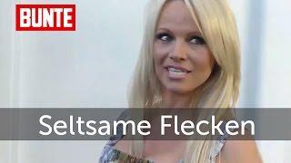 Pamela Anderson - Seltsame Flecken am Körper   - BUNTE TV