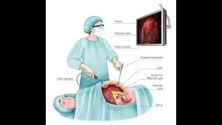 Лапароскопия и гистероскопия у женщин