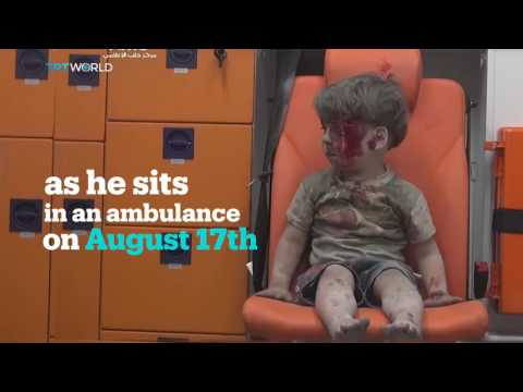 Syrian boy Omran Daqneesh survives Aleppo attack, becomes international symbol