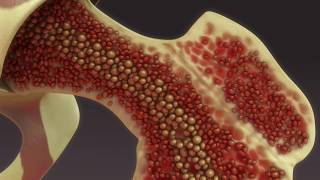 ¿Qué es la osteoporosis? - Mejor con salud