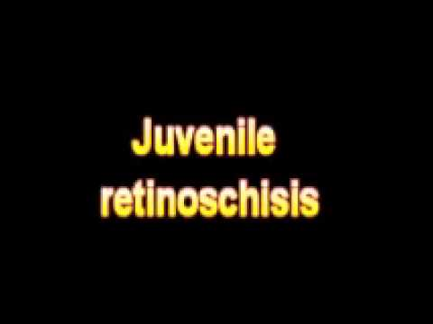 What Is The Definition Of Juvenile retinoschisis - Medical Dictionary Free Online Terms