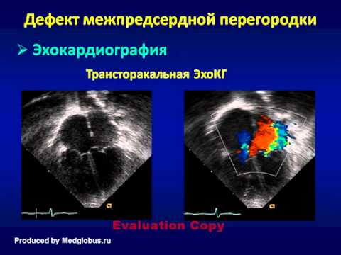 ДМПП или дефект межпредсердной перегородки: причины, симптомы ...