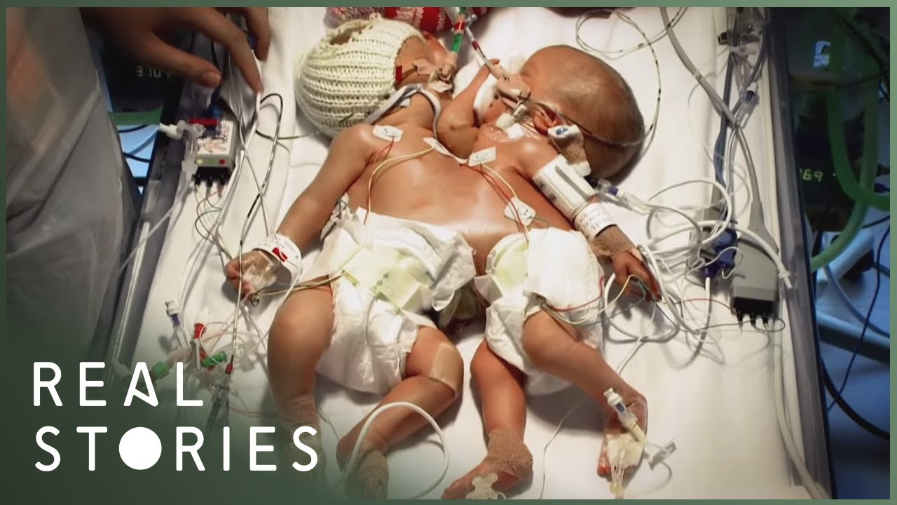 Conjoined Twins: The Tragedy of Hope and Faith (Medical Documentary) | Real Stories