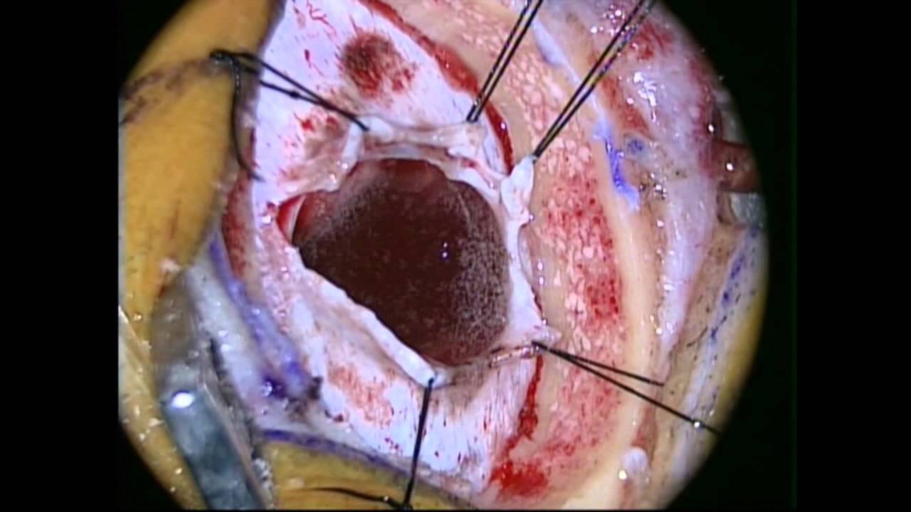 intracerebral hemorrhage youtube
