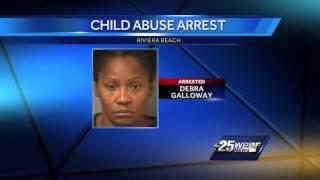 Riviera Beach police investigating case of severe child abuse