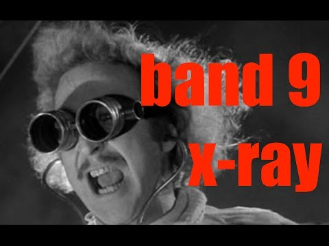 Band 9 writing under an X-ray!