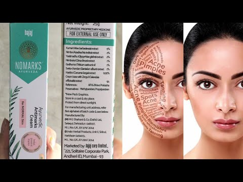 New Launch Bajaj NOMARKS Ayurvedic Antimarks Cream Review 😘😘 ||Beauty With Easy Tips