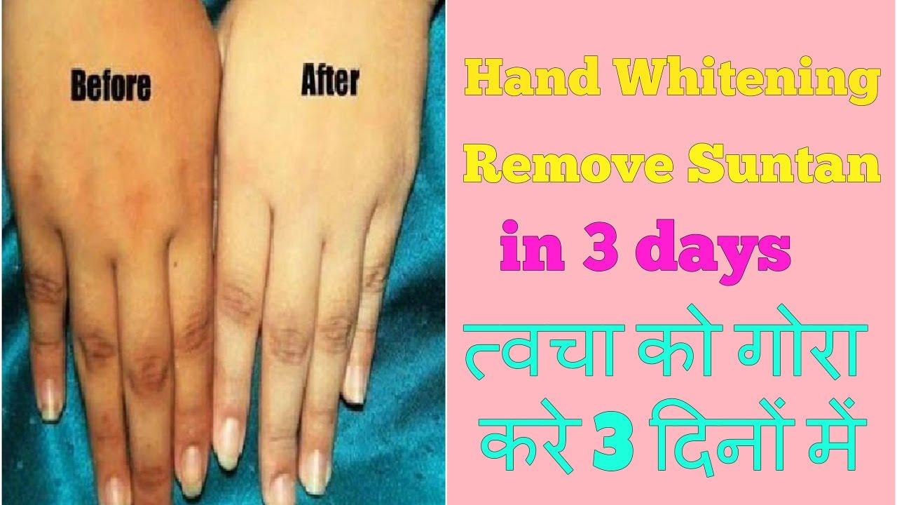 how to lighten feet skin