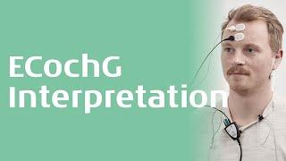 ECochG interpretation - Interacoustics